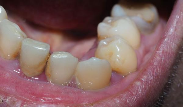 52829171 - diseased teeth of the patient. tartar and tooth decay